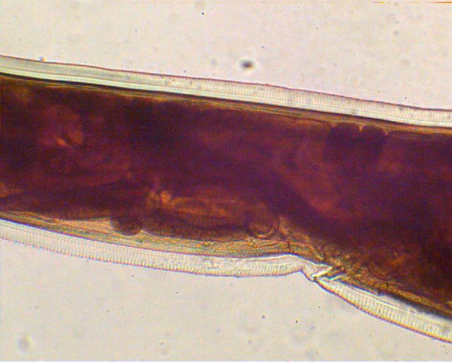 Ancylostoma Caninum Male and Female