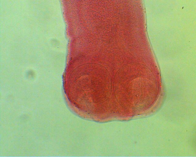 Moniezia scolex